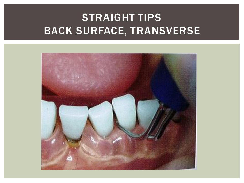 Straight Tips back surface, transverse