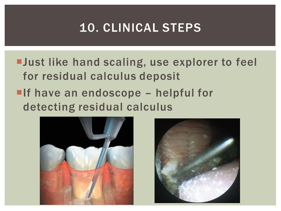 10. Clinical steps Just like hand scaling, use explorer to feel for residual calculus deposit.