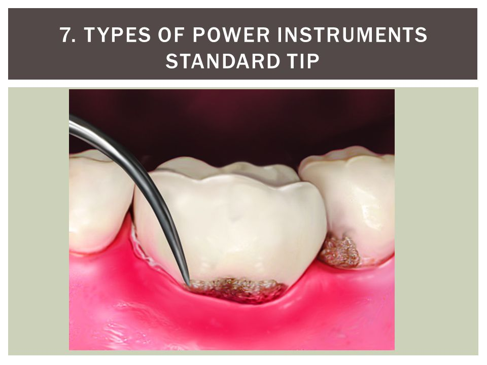 7. Types of power instruments Standard tip