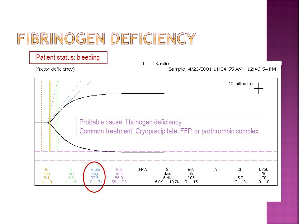Fibrinogen Deficiency