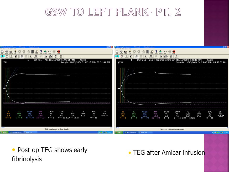 GSW to Left Flank- pt. 2 Post-op TEG shows early fibrinolysis