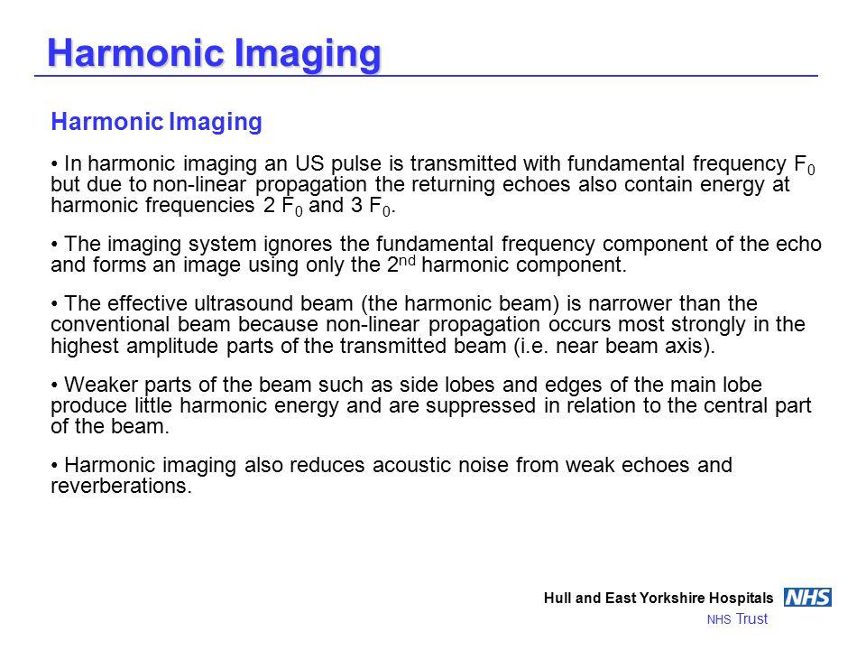 Harmonic Imaging Harmonic Imaging