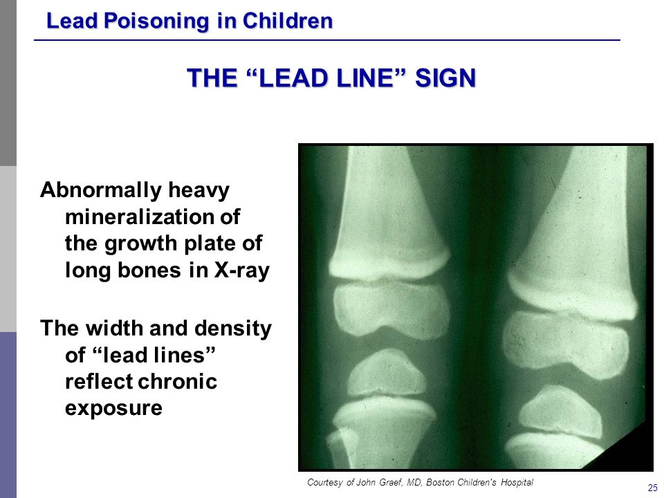 THE LEAD LINE SIGN Abnormally heavy mineralization of the growth plate of long bones in X-ray.