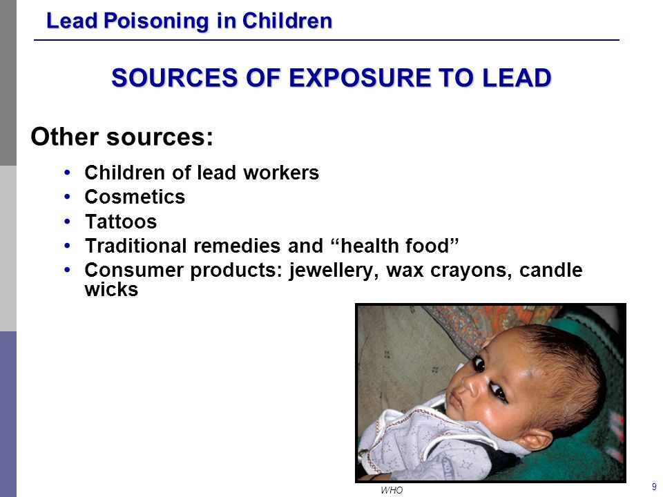 SOURCES OF EXPOSURE TO LEAD