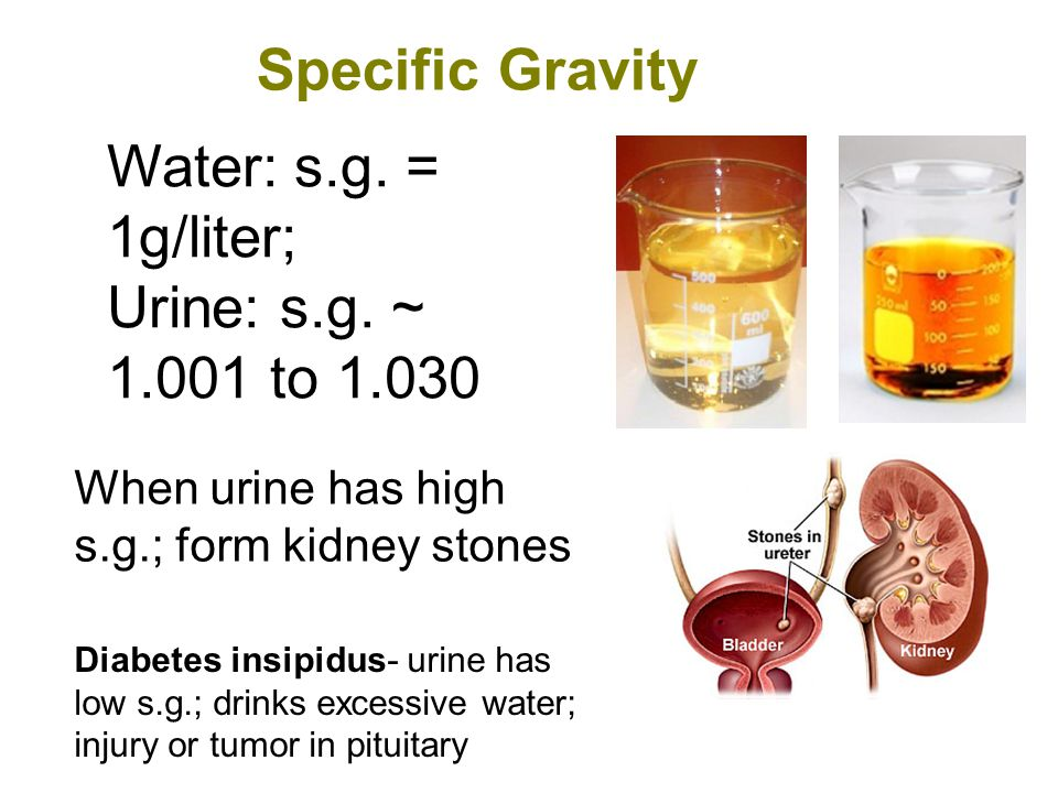 Specific Gravity Water: s.g. = 1g/liter; Urine: s.g. ~ 1.001 to 1.030