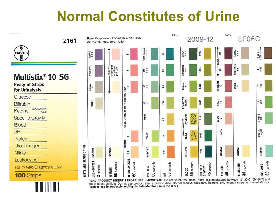 Normal Constitutes of Urine