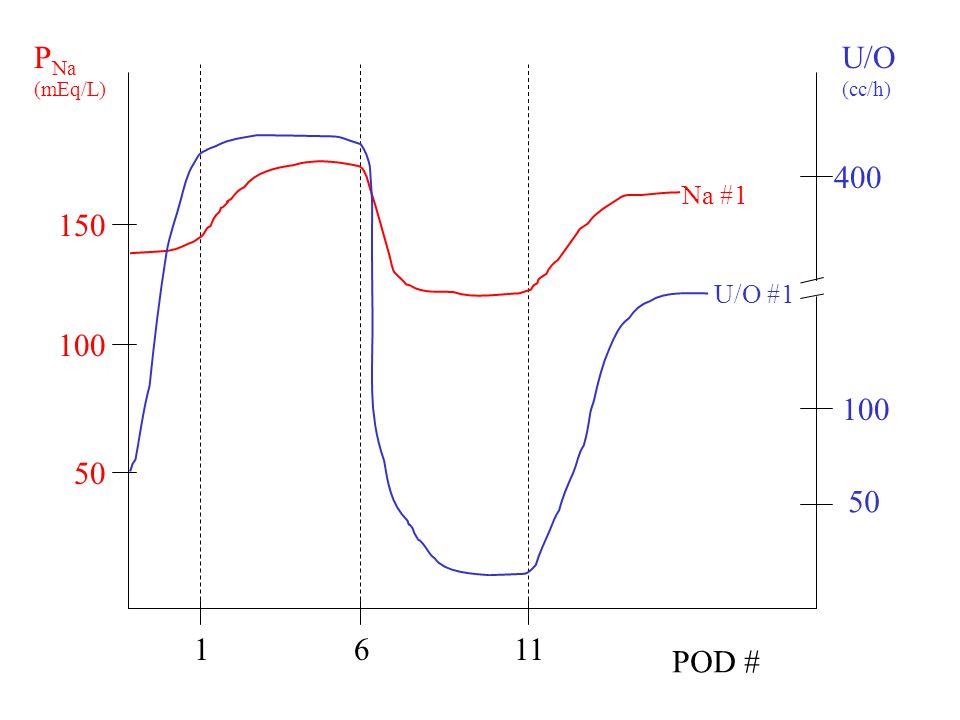PNa (mEq/L) U/O (cc/h) 400 Na #1 150 U/O #1 100 100 50 50 1 6 11 POD #