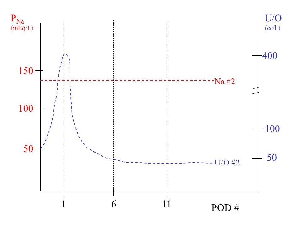 PNa (mEq/L) U/O (cc/h) 400 150 Na #2 100 100 50 50 U/O #2 1 6 11 POD #
