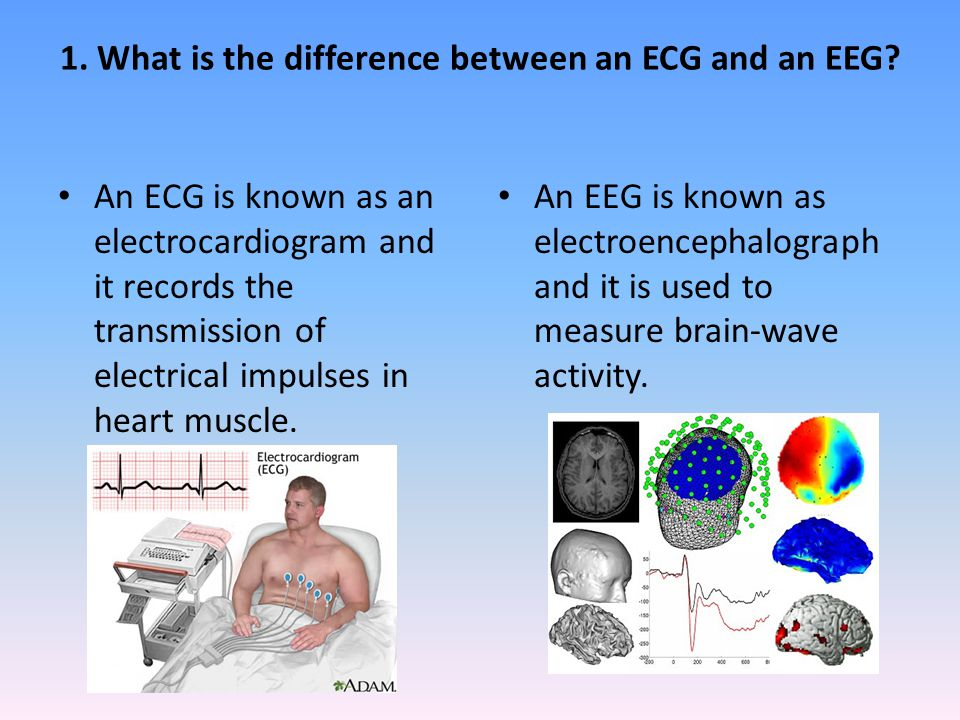1. What is the difference between an ECG and an EEG