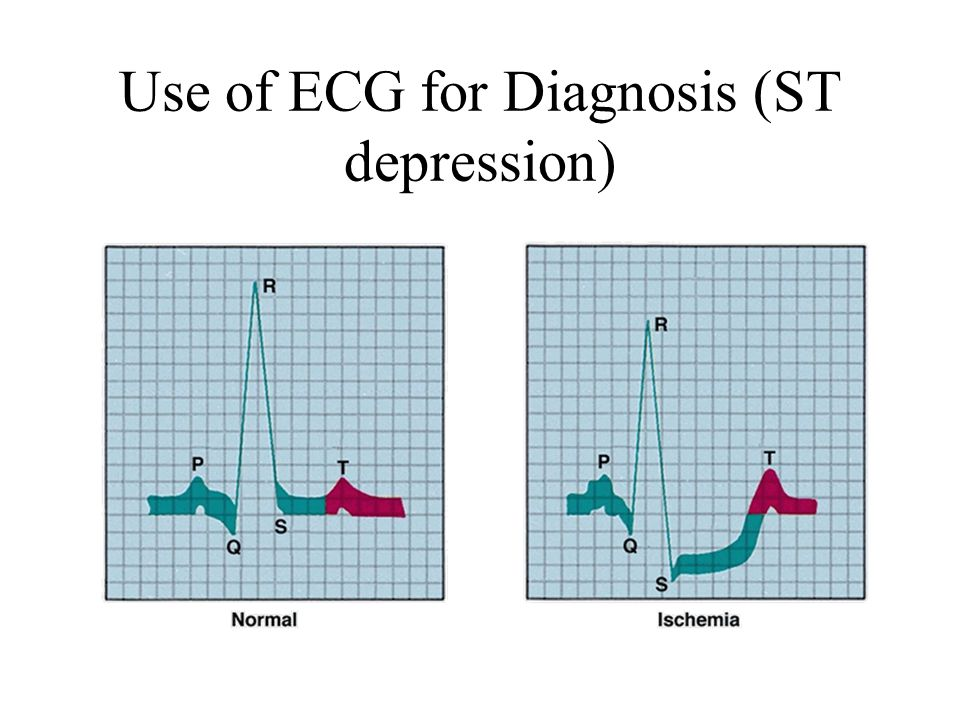 Use of ECG for Diagnosis (ST depression)