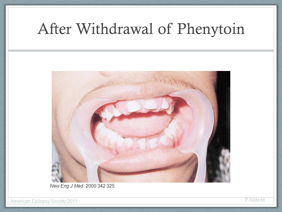After Withdrawal of Phenytoin