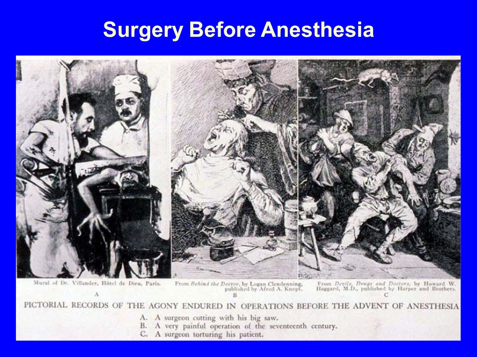Surgery Before Anesthesia