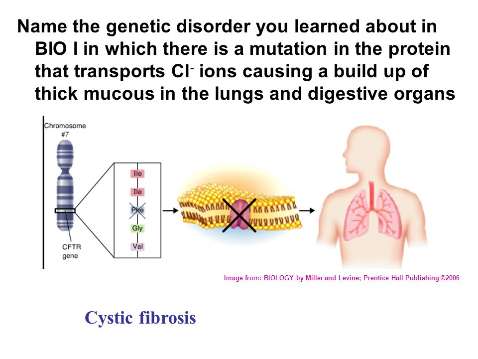 Name the genetic disorder you learned about in BIO I in which there is a mutation in the protein that transports Cl- ions causing a build up of thick mucous in the lungs and digestive organs