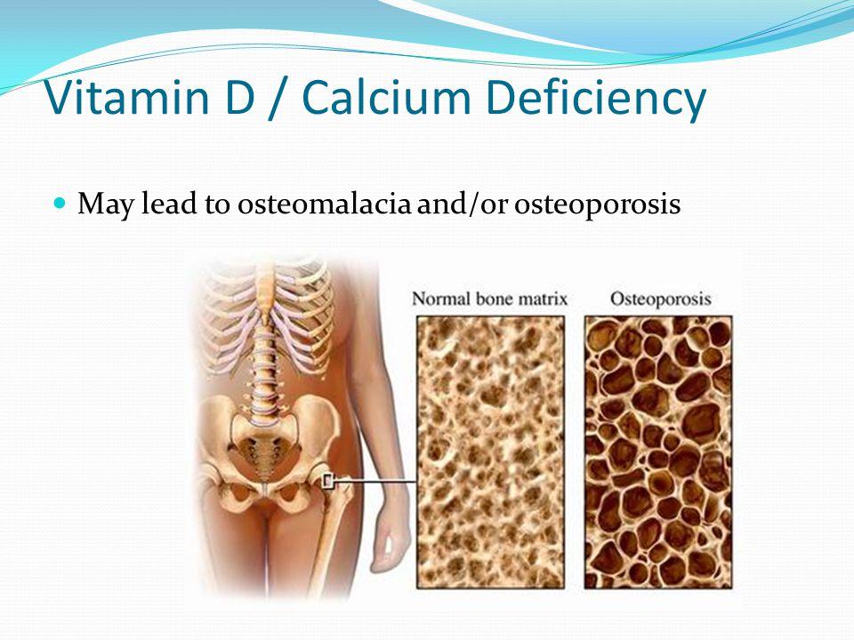 Vitamin D / Calcium Deficiency