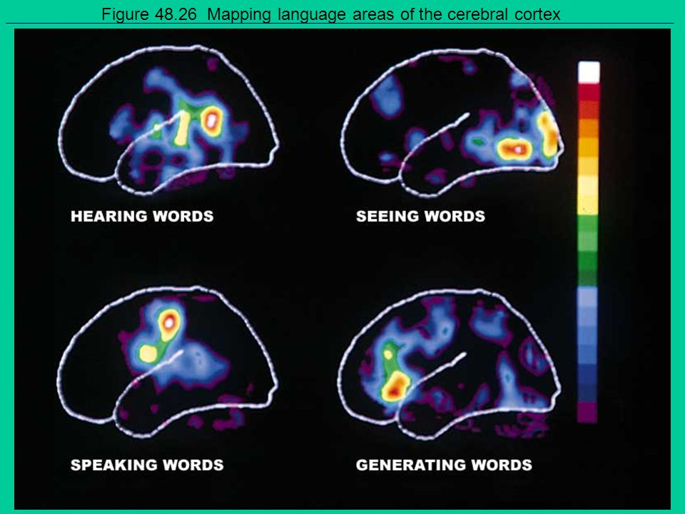 Figure 48.26 Mapping language areas of the cerebral cortex