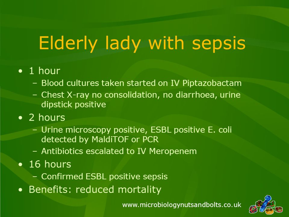 Elderly lady with sepsis