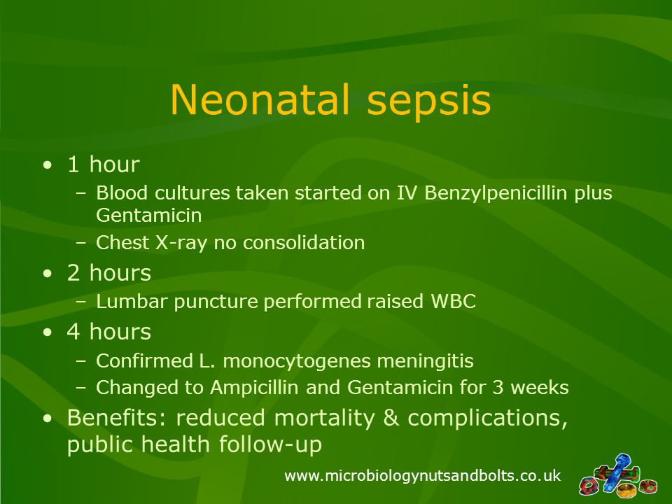 Neonatal sepsis 1 hour 2 hours 4 hours