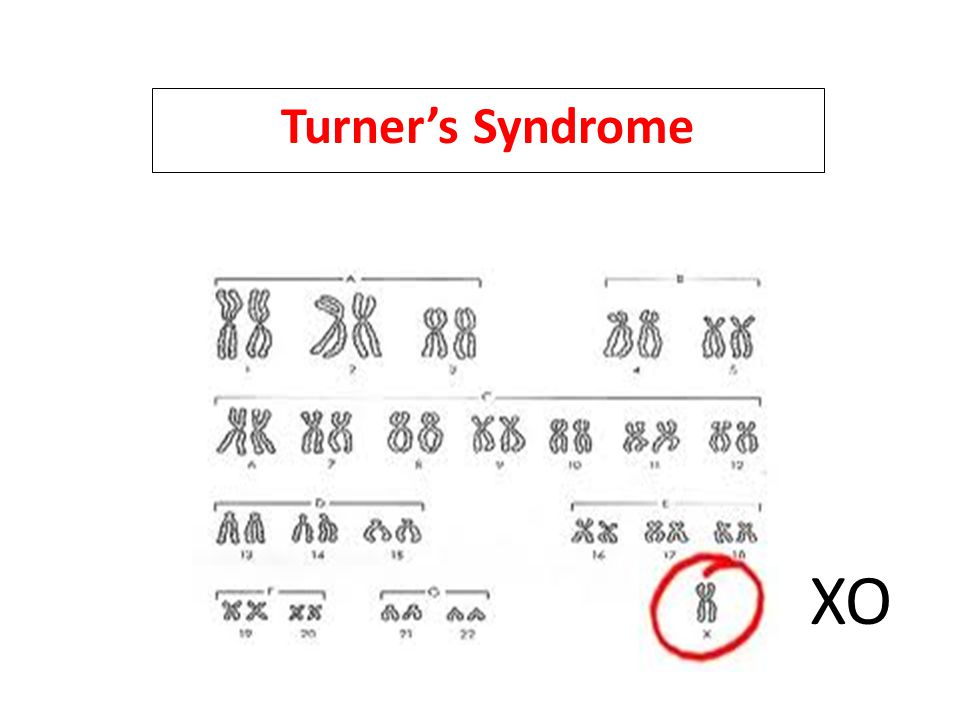 Turner's Syndrome XO