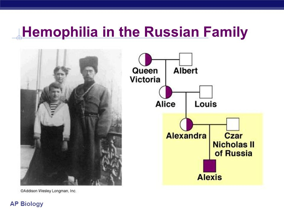 Hemophilia in the Russian Family