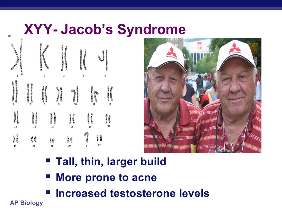 XYY- Jacob's Syndrome Tall, thin, larger build More prone to acne