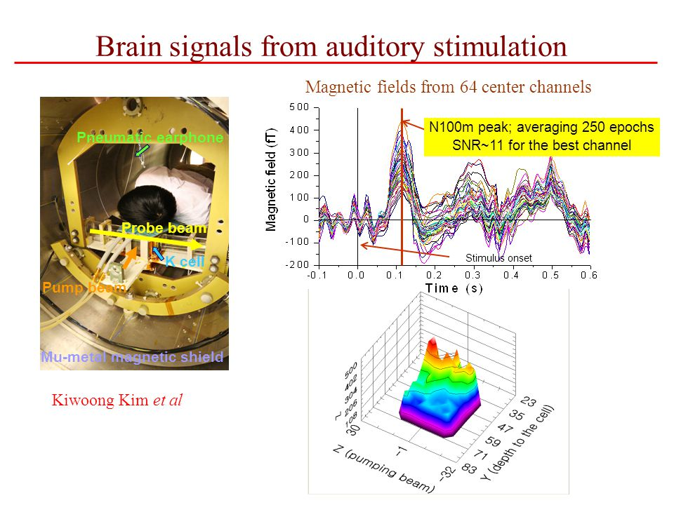 Brain signals from auditory stimulation