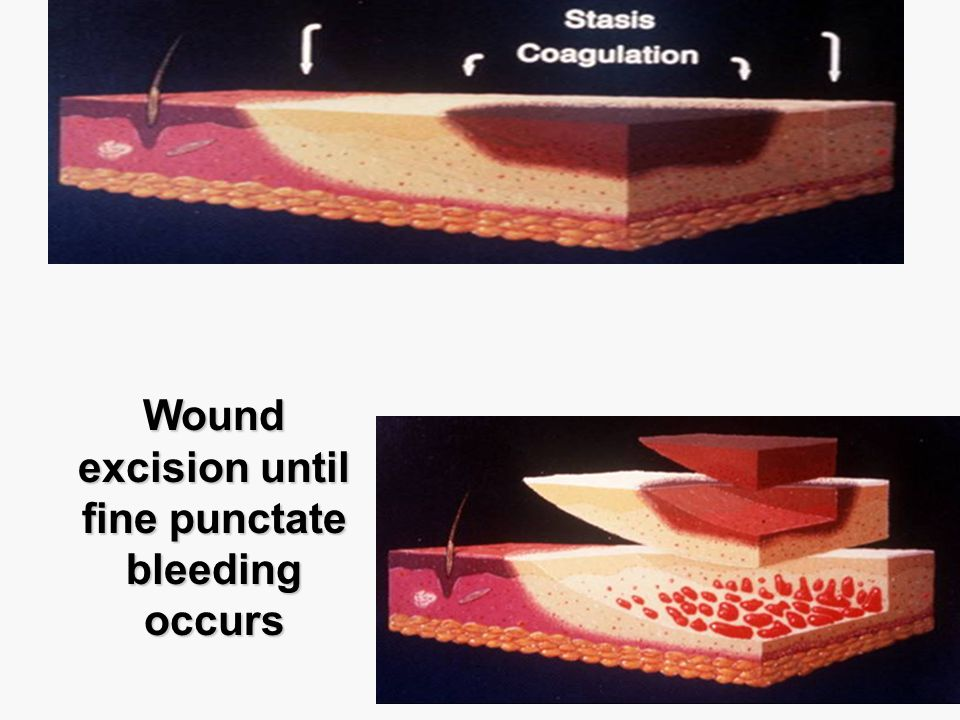Wound excision until fine punctate bleeding occurs