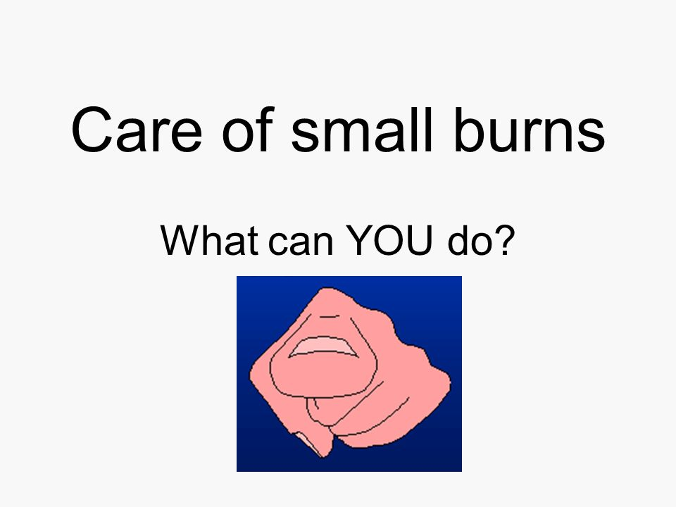 Care of small burns What can YOU do