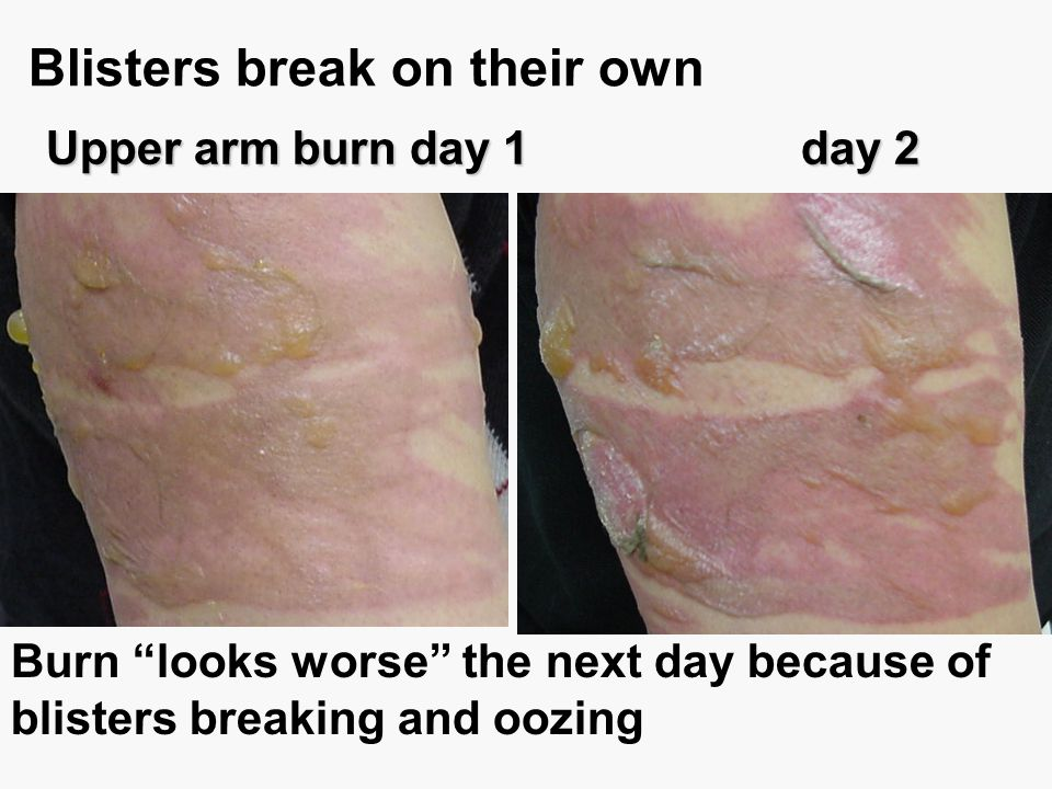 Blisters break on their own