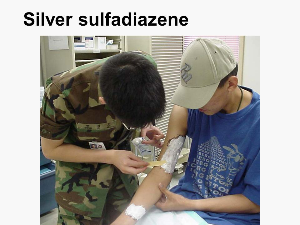 Silver sulfadiazene