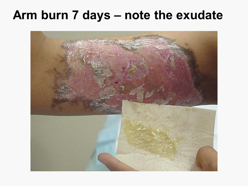 Arm burn 7 days – note the exudate
