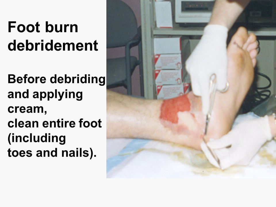 Foot burn debridement Before debriding and applying cream,