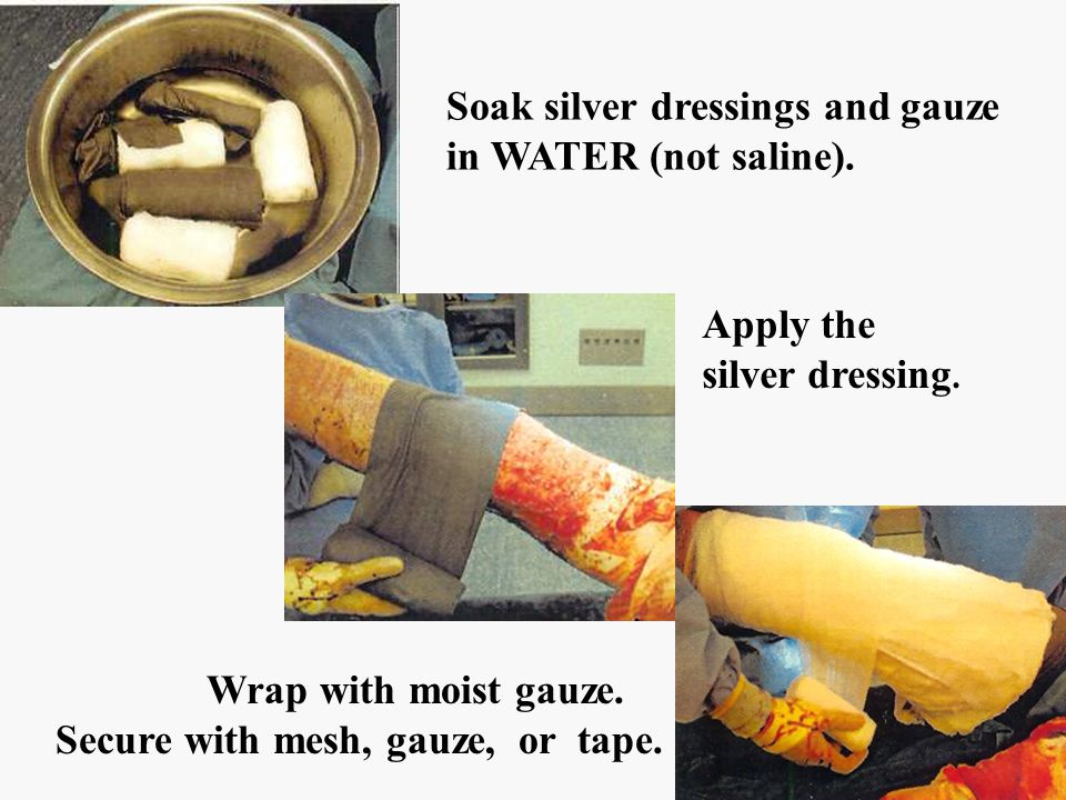 pics Soak silver dressings and gauze in WATER (not saline). Apply the