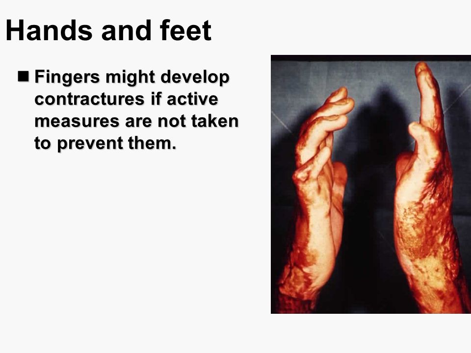 Hands and feet Fingers might develop contractures if active measures are not taken to prevent them.