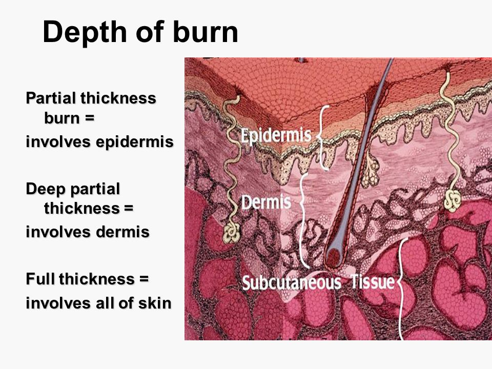 Depth of burn Partial thickness burn = involves epidermis