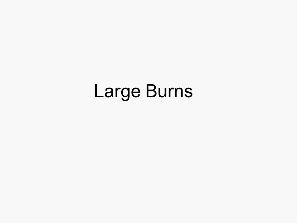Large Burns