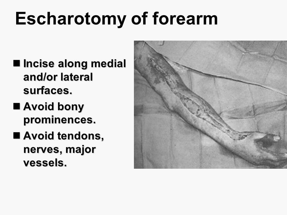 Escharotomy of forearm