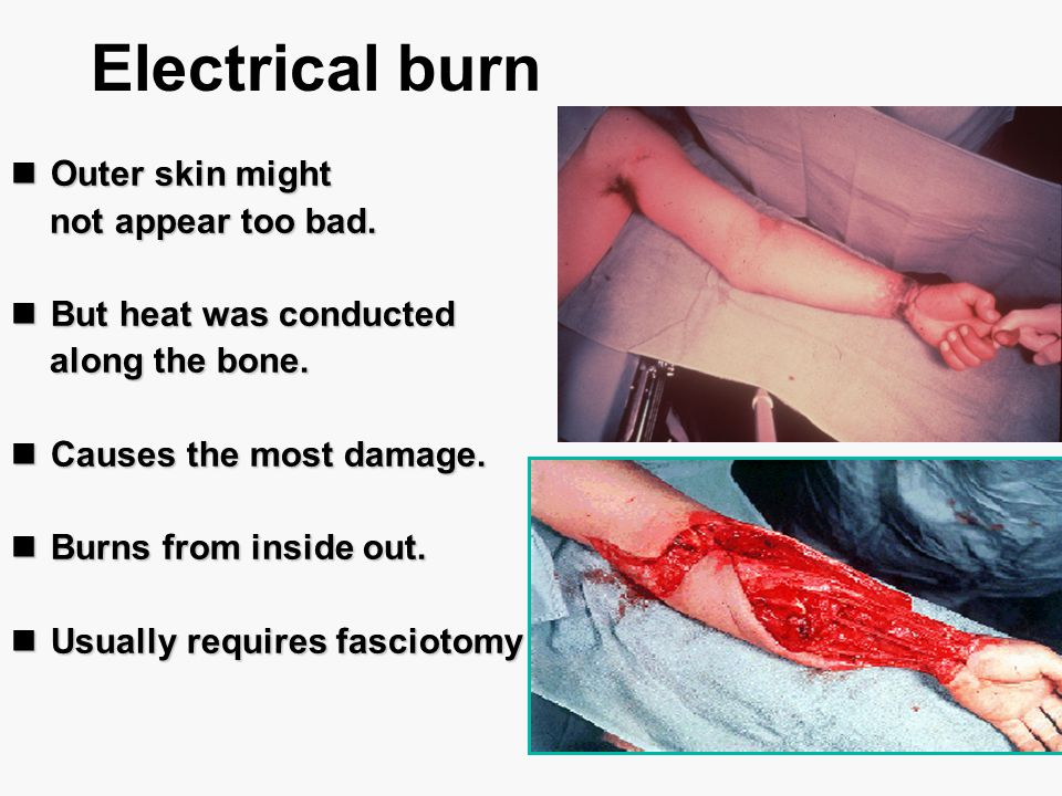 Electrical burn Outer skin might not appear too bad.
