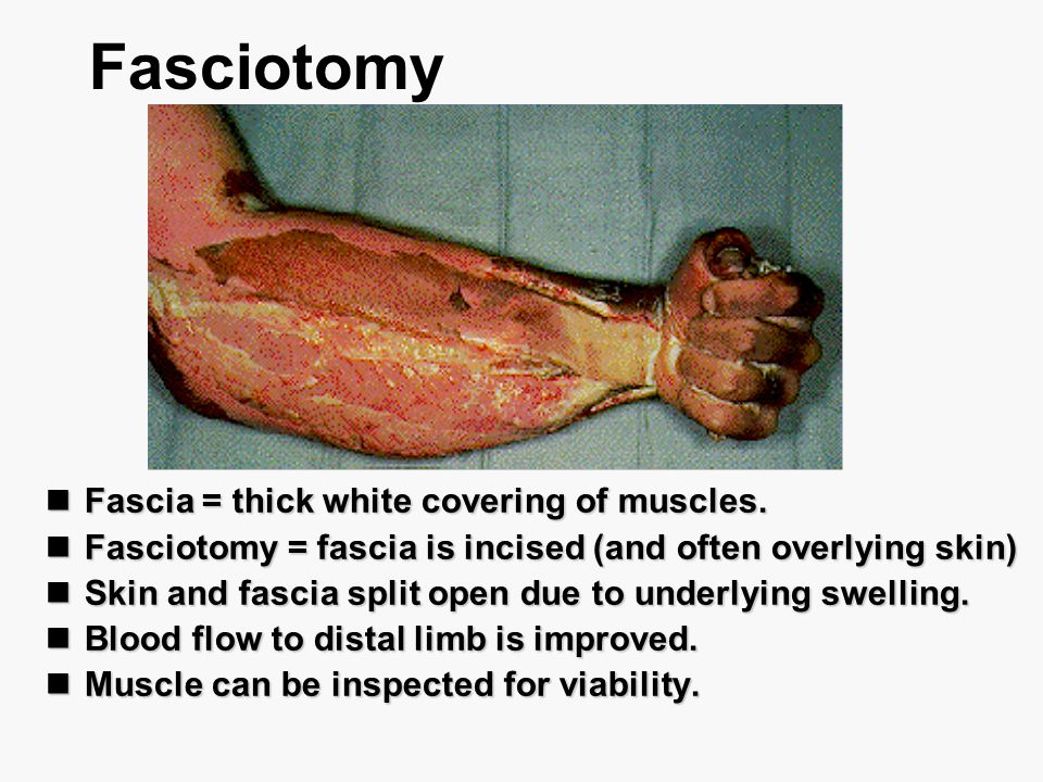 Fasciotomy Fascia = thick white covering of muscles.