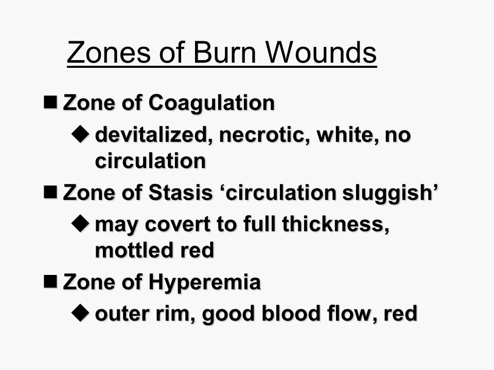 Zones of Burn Wounds Zone of Coagulation
