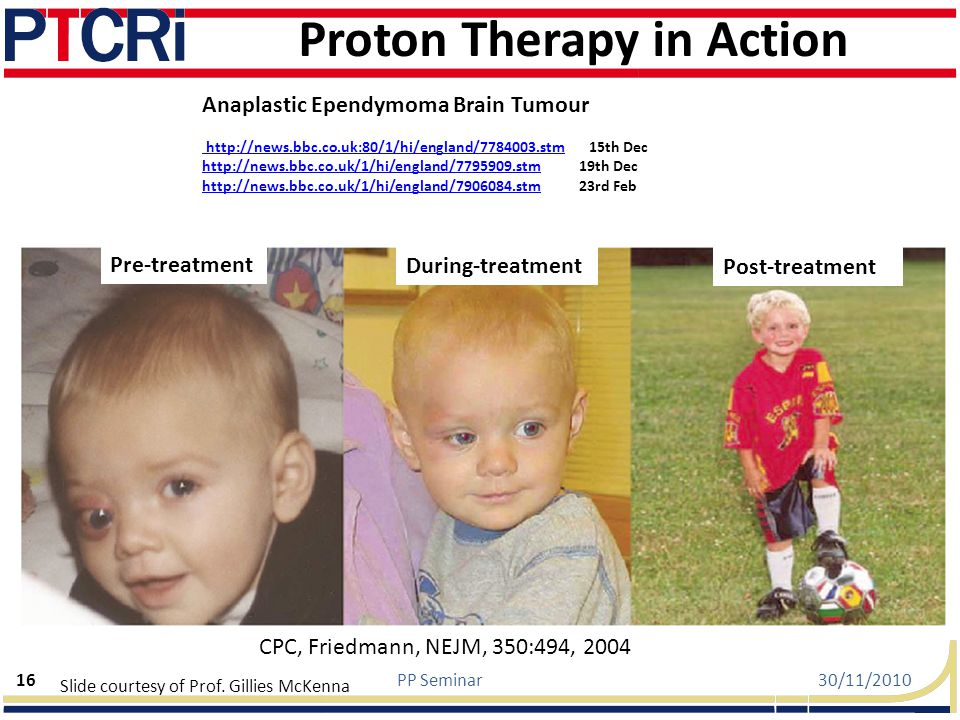 Proton Therapy in Action Anaplastic Ependymoma Brain Tumour http://news.bbc.co.uk:80/1/hi/england/7784003.stm 15th Dec http://news.bbc.co.uk/1/hi/england/7795909.stm 19th Dec http://news.bbc.co.uk/1/hi/england/7906084.stm 23rd Feb