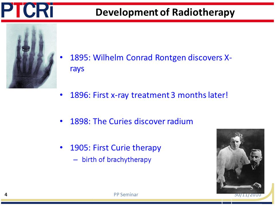 Development of Radiotherapy