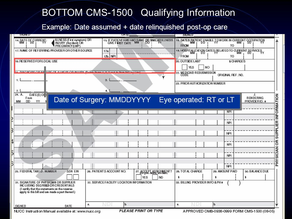 Date of Surgery: MMDDYYYY Eye operated: RT or LT