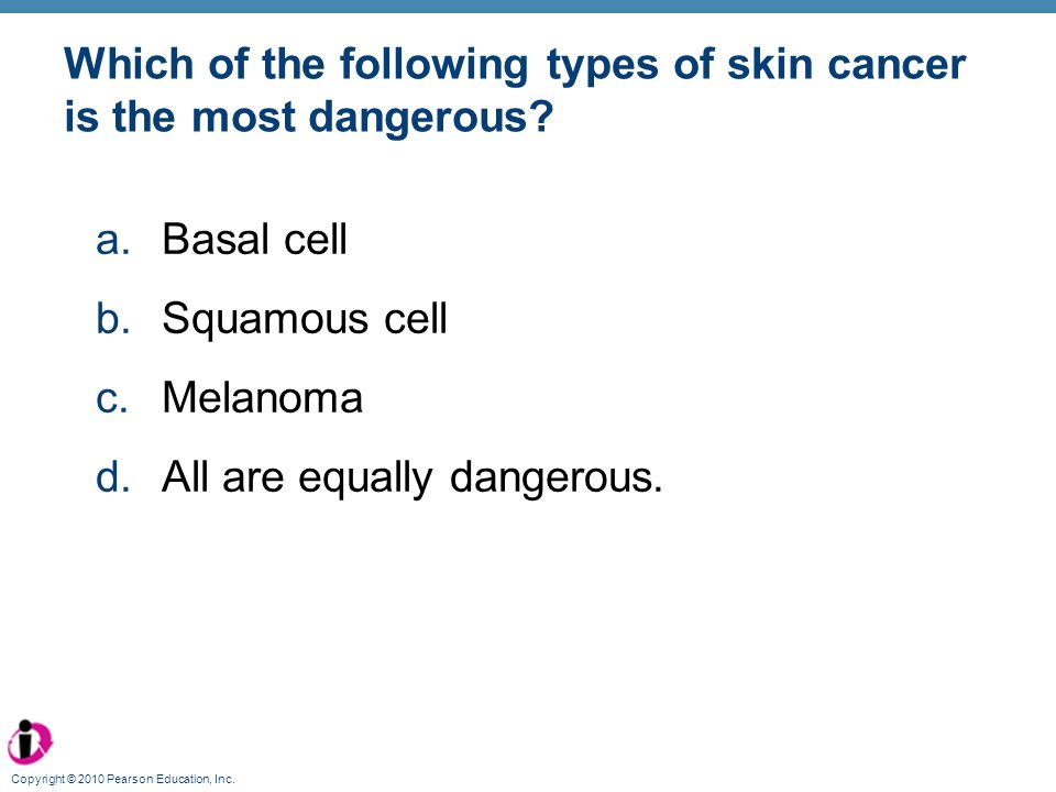 Which of the following types of skin cancer is the most dangerous