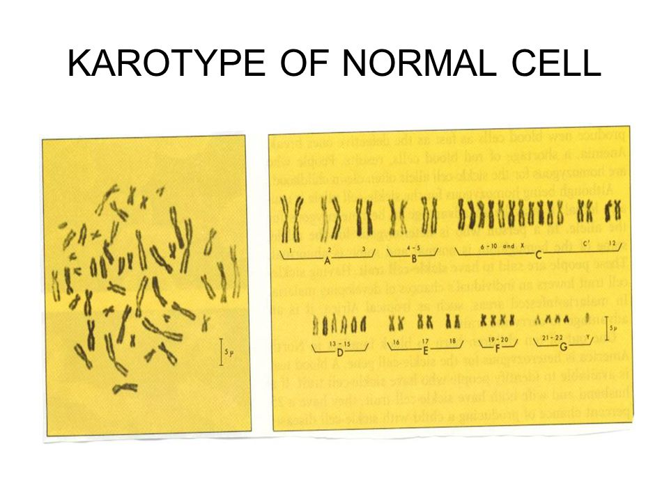 KAROTYPE OF NORMAL CELL