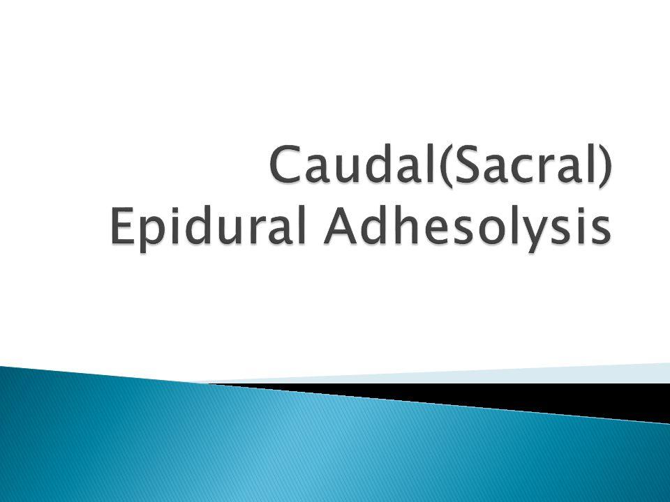 Caudal(Sacral) Epidural Adhesolysis