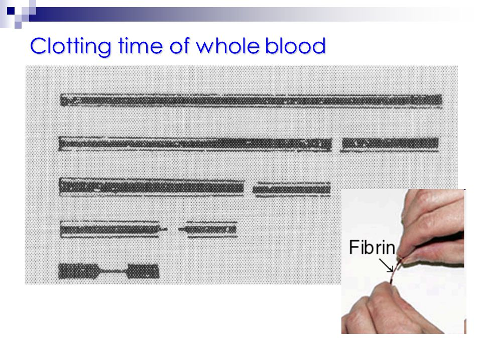 Clotting time of whole blood