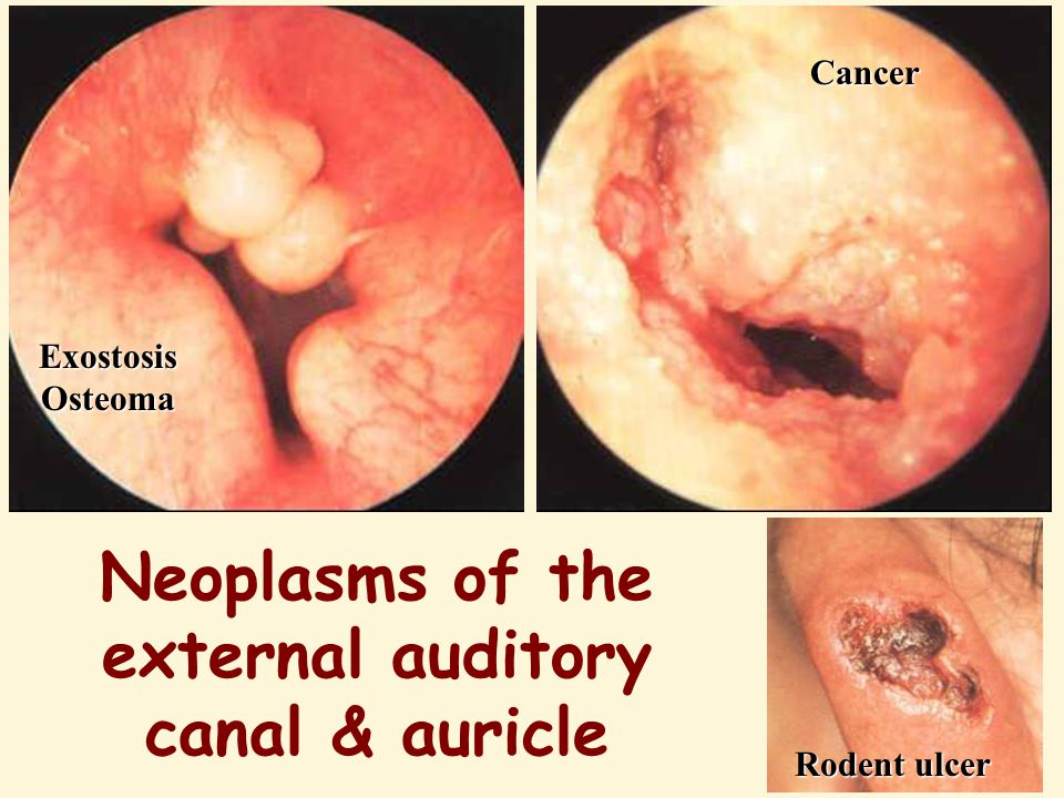Neoplasms of the external auditory canal & auricle