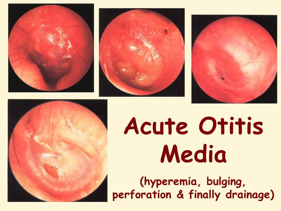 (hyperemia, bulging, perforation & finally drainage)