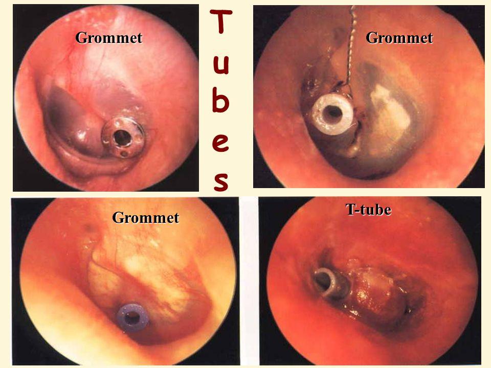 Tubes Grommet Grommet T-tube Grommet