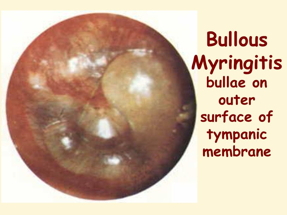 Bullous Myringitis bullae on outer surface of tympanic membrane